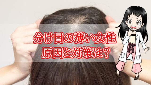 分け目・薄い・女性・原因・対策・育毛剤