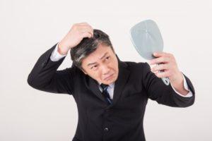 【男性の薄毛】AGA(男性型脱毛症)とは?