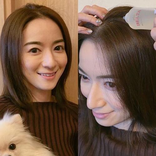 ベルタ育毛剤を愛用してる芸能人・有名人・渡辺真由子