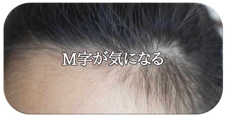 【M字が気になる】・症状
